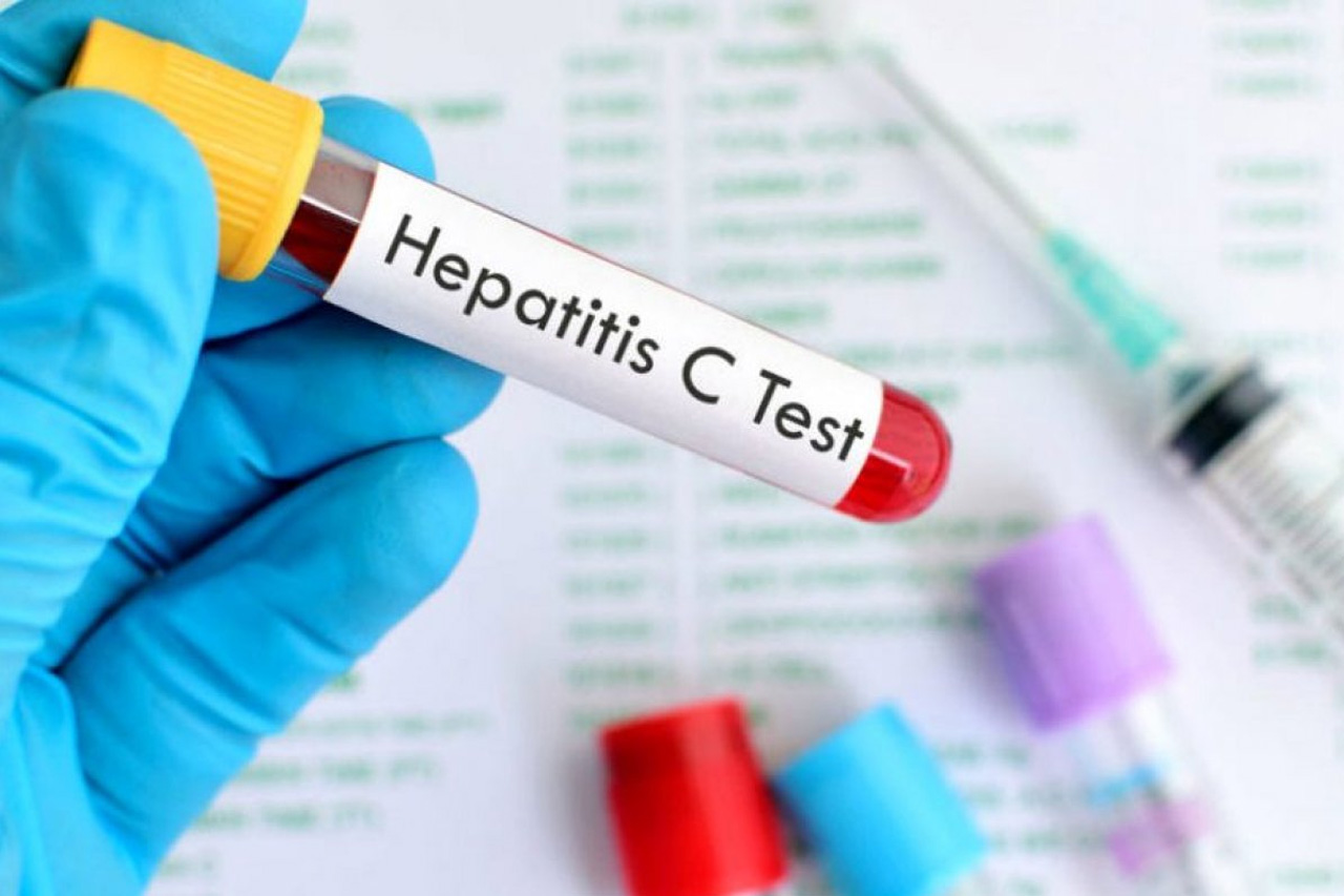 Hepatitis C Virus: Why You Should Get Tested